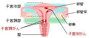 子宮がんの発生部位